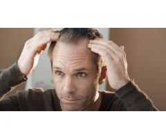 Best Hair Transplant Clinic In Delhi.