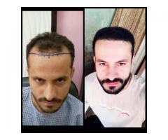 Looking For Hair Transplant Clinic in Chandigarh